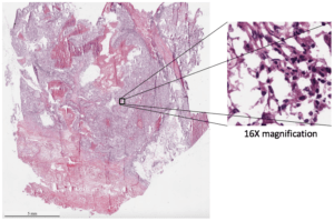 a patient-derived xenograft (PDX)